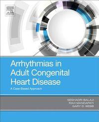 Arrhythmias in Adult Congenital Heart Disease