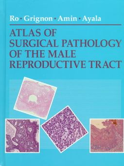 Atlas of Surgical Pathology of the Male Reproductive Tract