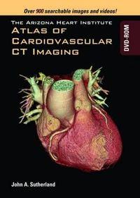 The Arizona Heart Institute Atlas of Cardiovascular Ct Imaging