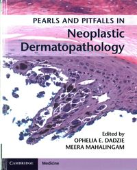 Pearls and Pitfalls in Neoplastic Dermatopathology