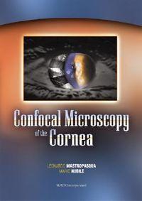 Confocal Microscopy of the Cornea