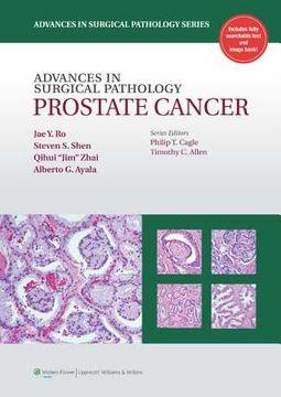 Advances in Surical Pathology Prostate Cancer