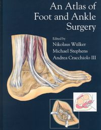 An Atlas of Foot and Ankle Surgery