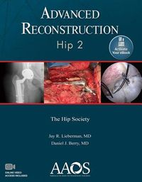 Advanced Reconstruction Hip 2