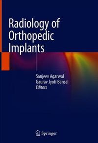 Radiology of Orthopedic Implants