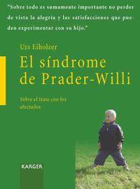 El Sindrome De Prader-willi