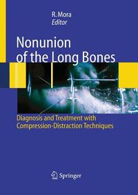 Nonunion of the Long Bones