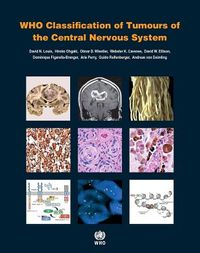 WHO Classification of Tumours of the Central Nervous System